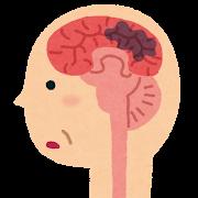 認知症 脳内